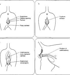 3 schematic presentation of surgical excision a episiotomy to visualise tumour [ 922 x 898 Pixel ]