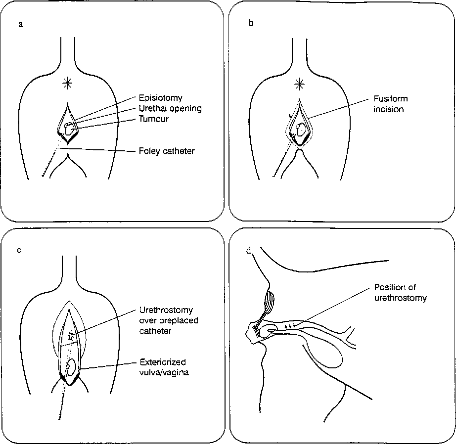 hight resolution of 3 schematic presentation of surgical excision a episiotomy to visualise tumour