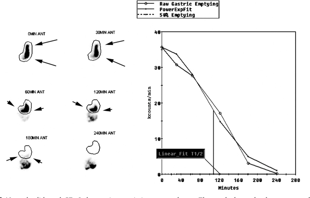 Figure 2 from Advancing gastric emptying studies