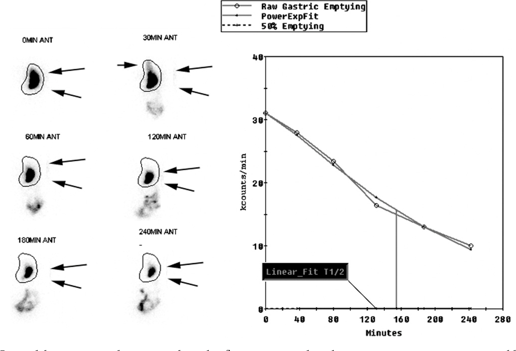 Figure 5 from Advancing gastric emptying studies