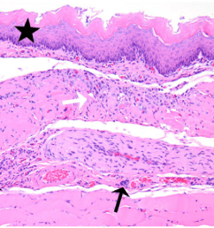 thoracic esophagus from a rat with megaesophagus showing mild [ 1194 x 888 Pixel ]
