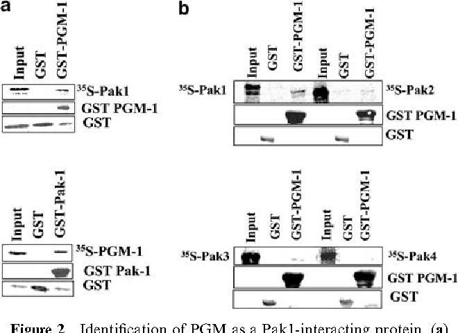 Regulation of phosphoglucomutase 1 phosphorylation and