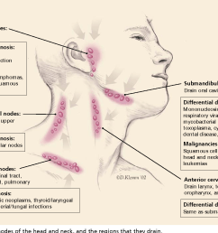 lymph nodes of the head and neck and the regions that they [ 1320 x 932 Pixel ]