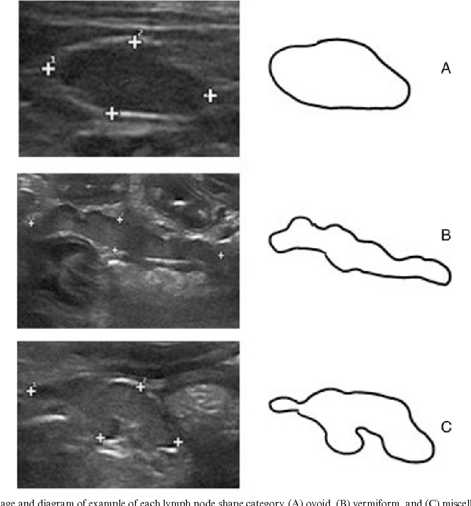 medium resolution of ultrasound image and diagram of example of each lymph node shape category