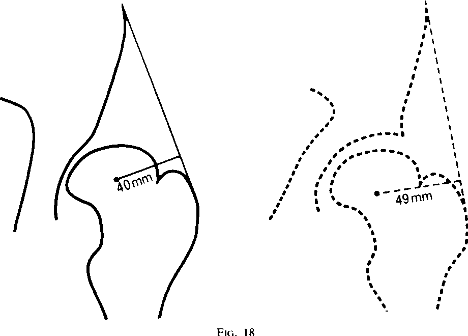 Figure 10 from Chiari osteotomy for acetabular dysplasia