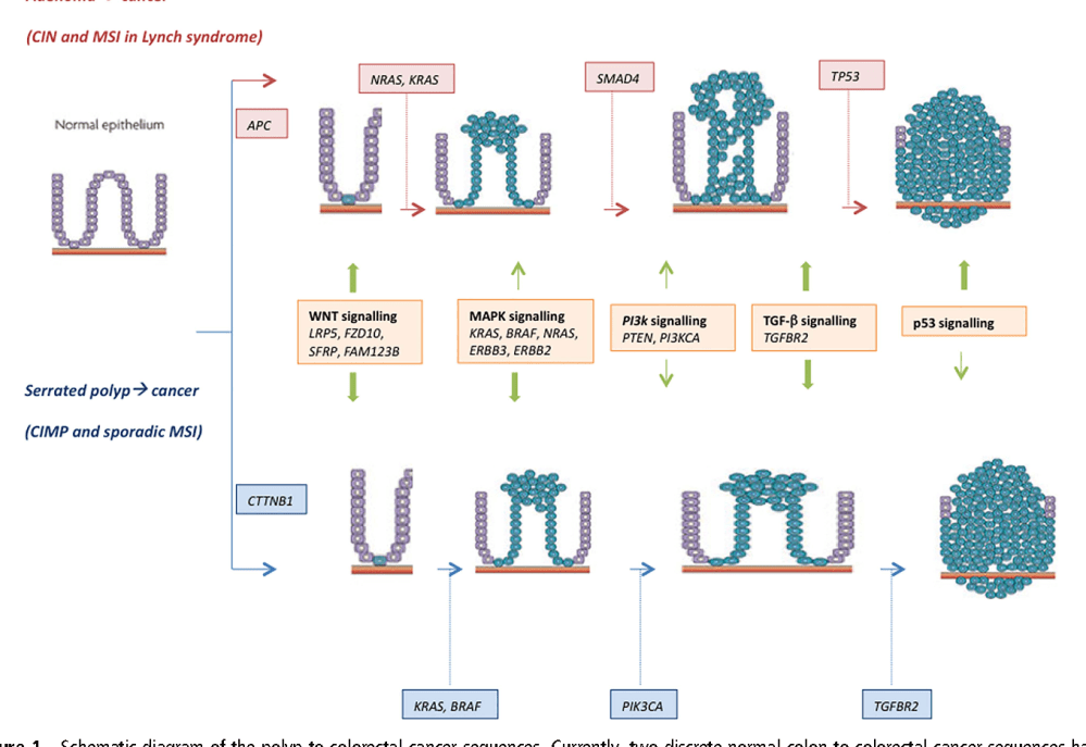 medium resolution of figure 1 schematic diagram of the polyp to colorectal cancer sequences currently two discrete