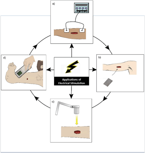 small resolution of diagram demonstrating the various modes of application of electrical stimulation es