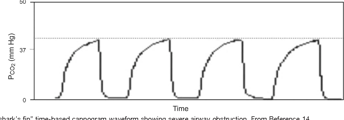 Figure 7 from Monitoring Sidestream CO 2 Monitoring