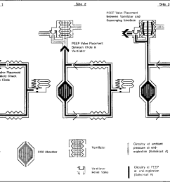 schematic for breathing circuits studied showing end expiratory pressure at various [ 1386 x 956 Pixel ]