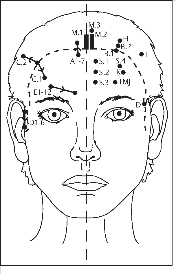 Figure 1–3 from Introduction to Yamamoto New Scalp