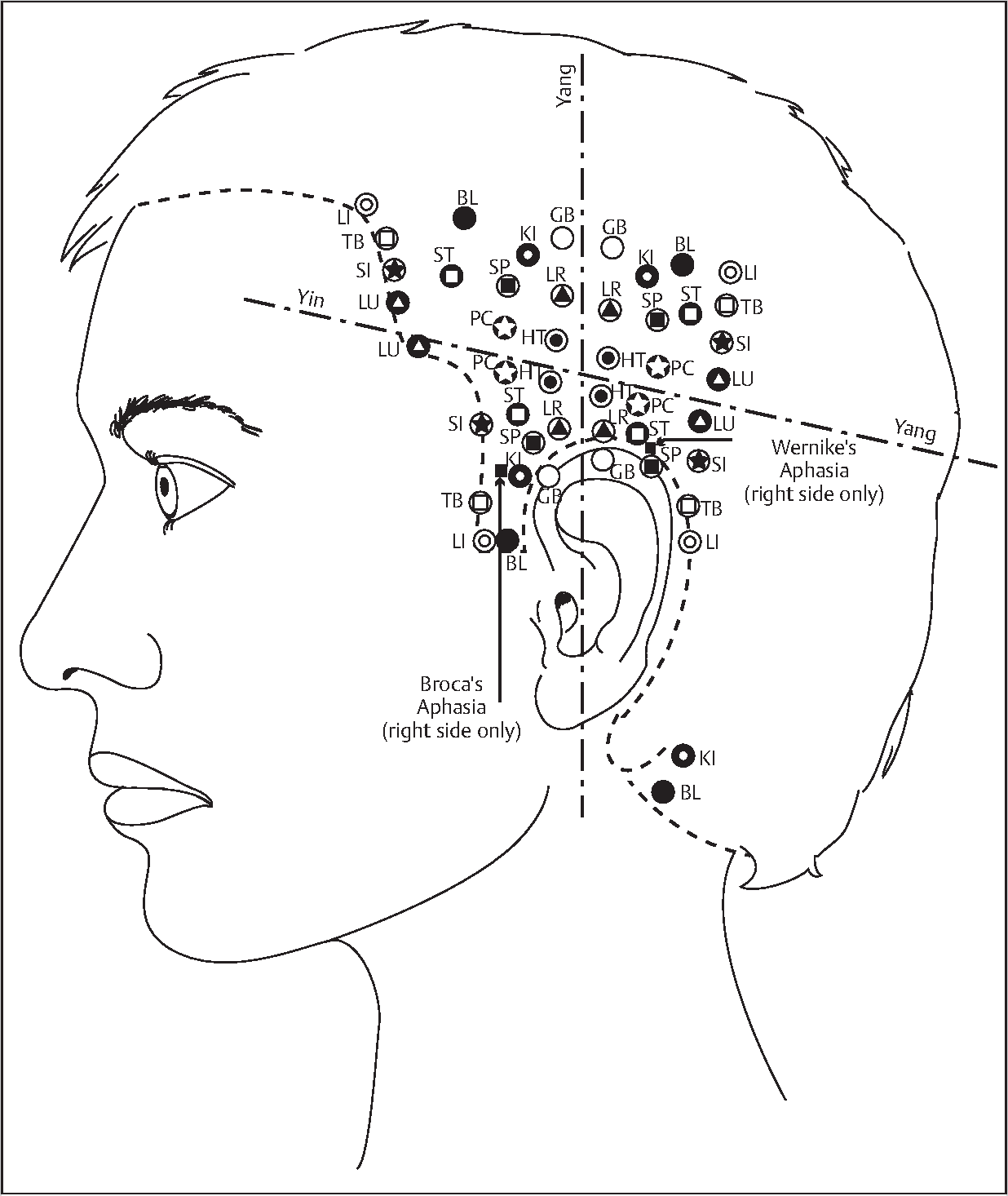 Figure 1–5 from Introduction to Yamamoto New Scalp