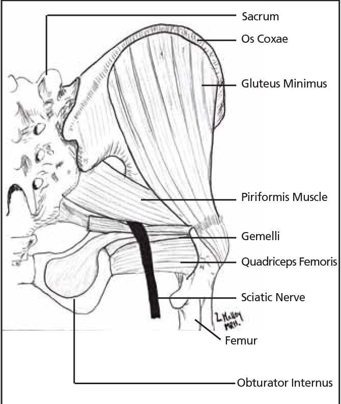 diagram of piriformis syndrome