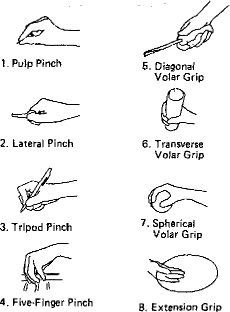 Figure 1 from Sollerman hand function test. A standardised
