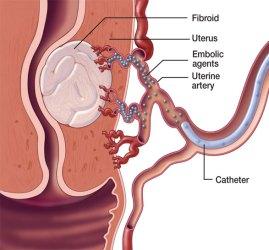 uterine-artery-embolization_2