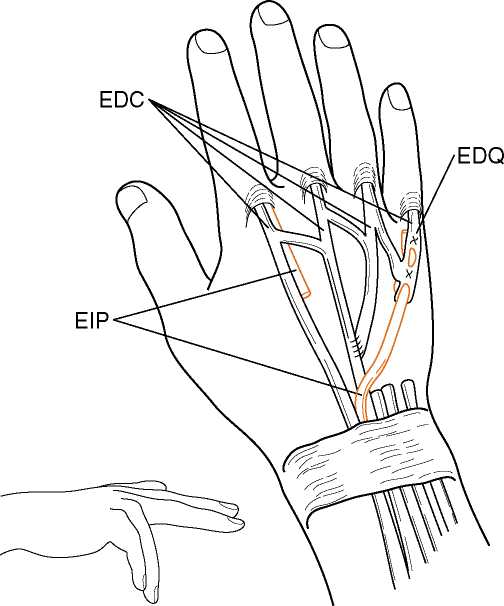 Eip to edc tendon transfer cpt