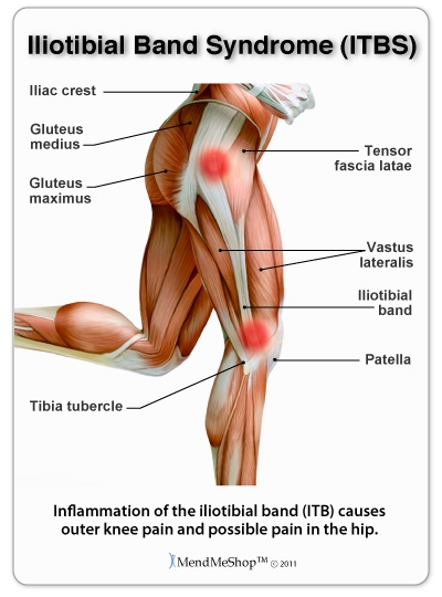Its Vs Itb : Iliotibial, Syndrome, (ITBS)