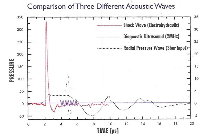 comparison of three different acoustic waves