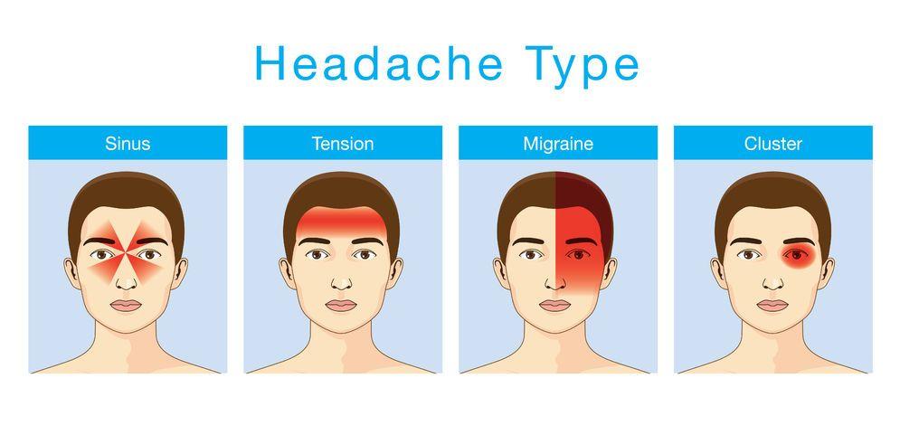 Wujudkah Sakit Kepala Sebelah Bahagian?
