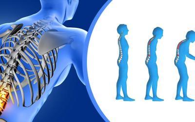 Cegah Osteoporosis Sebelum Terlambat!