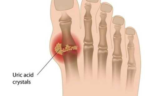 petua hilangkan gout