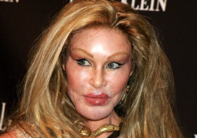 Jocelyn Wildenstein -According to Listverse,this wealthy socialite is the world's ugliest female celebrity - a case of plastic surgery gone wrong