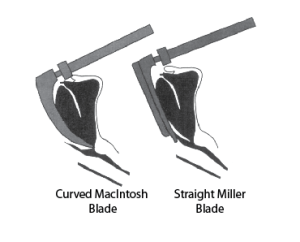 Illustration showing difference in final position between straight and curved blades. Curved blade on left places tip in vallecula. Straight blade on right lifts epiglottis directly.