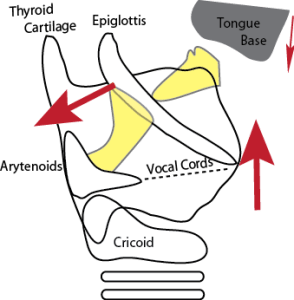 Picture showing how the unbalanced forces resulting from removal of the hyoid bone during thyroglossal duct excision can predispose to airway obstruction.