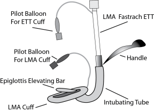 Parts of an LMA Fastrach