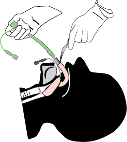 Inserting the endotracheal tube into the Fastrach channel