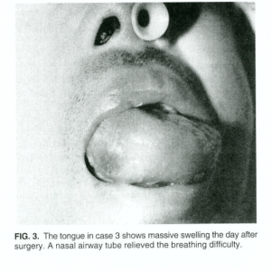 Photo of tongue with massive edema ceased by ETT compression from J Spinal Disord. Vol 9. No. 4 1996.