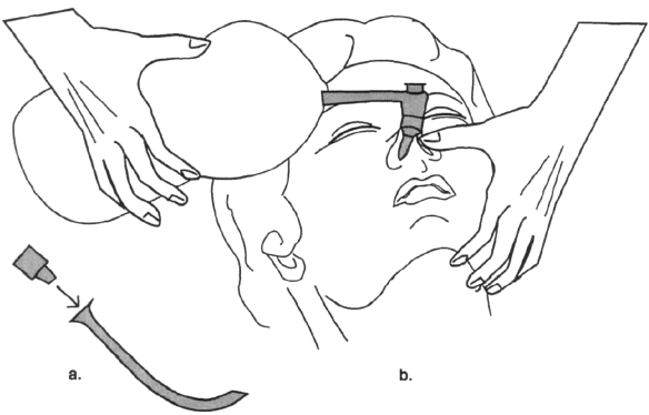 Illustration of An alternate means of ventilation — insert an endotracheal tube connector into a nasal airway as in a. Place the nasal airway, close the opposite nostril and mouth. Ventilate as in b.