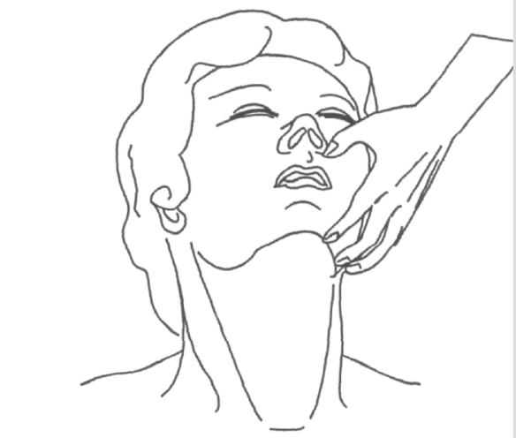 Illustration showing opening the airway by extending the head