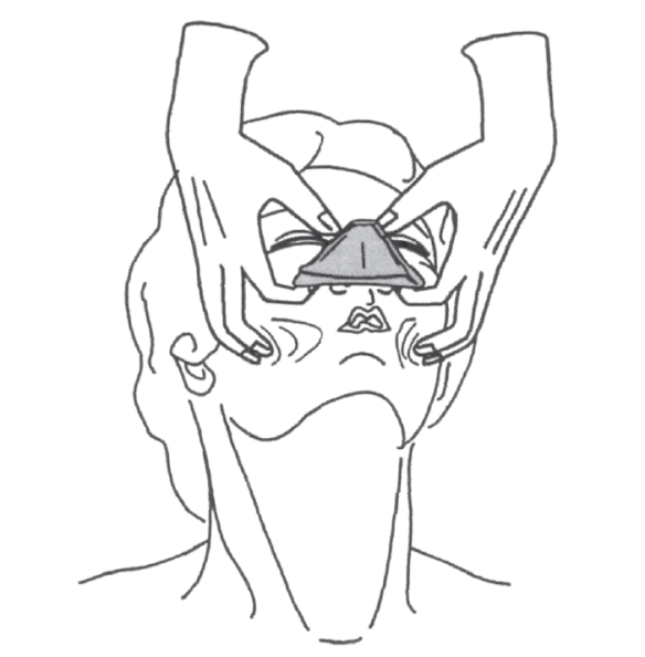 Illustration showing pulling the face into the mask, using the cheek tissue on either side to help make the seal while makes ventilating a patient