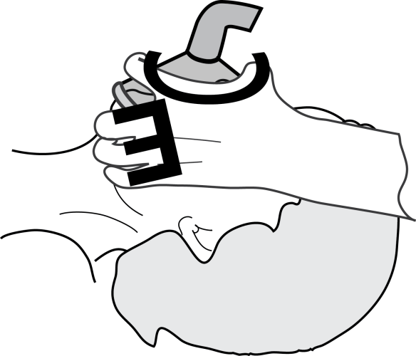 Illustration showing Thumb and forefinger positions to obtain an effective mask seal when ventilation in an airway emergency