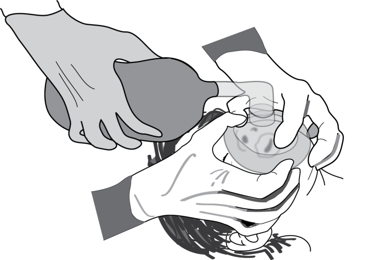 Illustration showing the technique of using both your hand to seal a mask and having an assistant squeeze the bag as a way to ventilate effectively during airway emergencies
