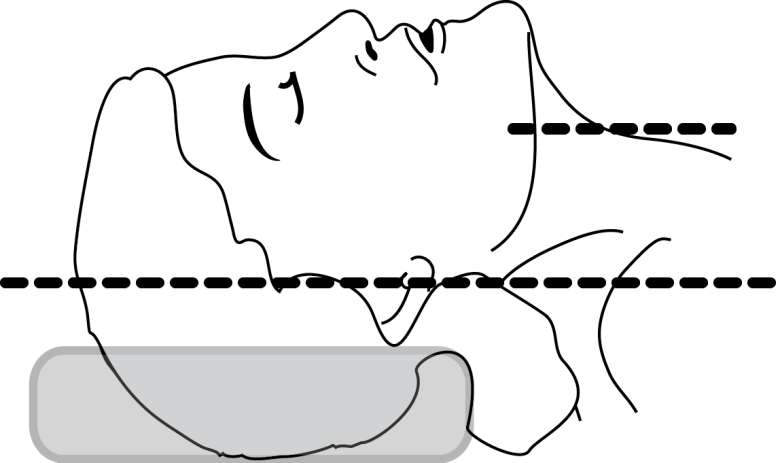Illustration of how a foam donut used for positioning the head for intubation can fail to obtain a good sniffing position (From Anyone Can Intubate, 5th Ed.)