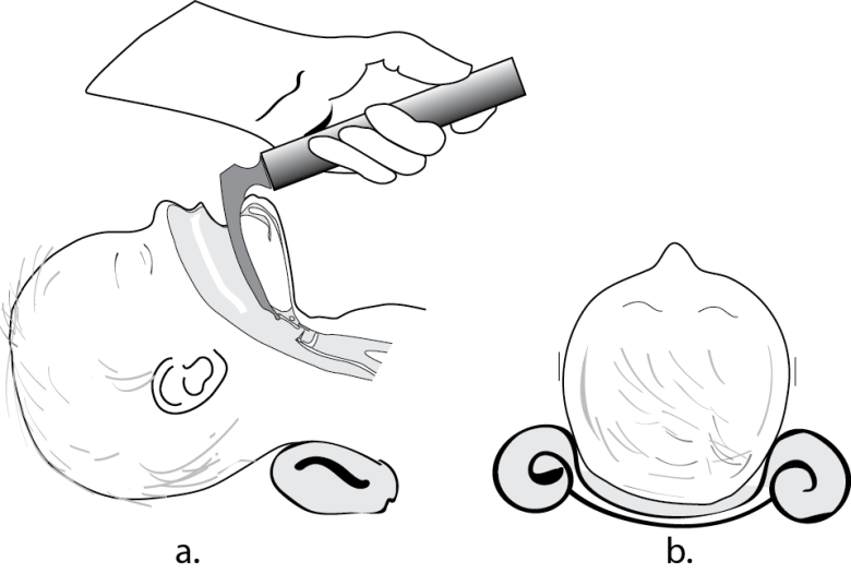 Illustration showing how the infant head tends to roll and a method of stabilizing it make intubation faster and easier.