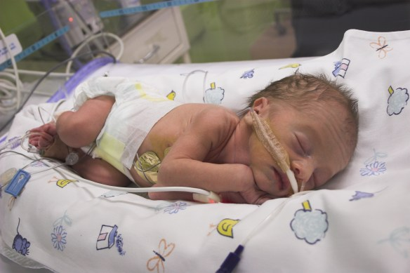 Photo of Premature baby boy in intensive care, one day old but with a gestational age about 31 weeks.