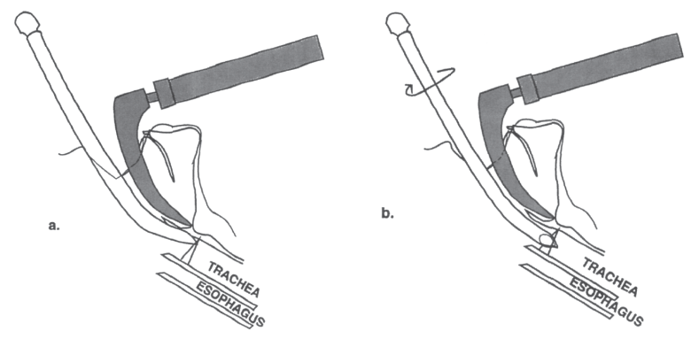 Illustration showing how If the tip of the endotracheal tube is caught on the anterior commissure, rotating it until the tip slips off can be a helpful trick.