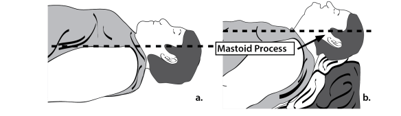 The board chest and breast tissue of the obese patient can hamper placement of the laryngoscope and make visualization difficult. Ramping the patient to ensure a good sniffing position makes laryngoscopy easier. Don't make the head support too high. Make sure that you can still tilt the head back.