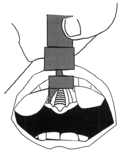 Illustration showing how a blade placed in the middle of the tongue will cause the tongue tissue to mound on either side, block both insertion of the blade as well as your tube. Illustration