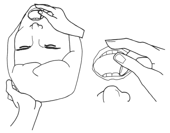 Illustration showing how to open the mouth in preparation for inserting the laryngoscope blade during intubation