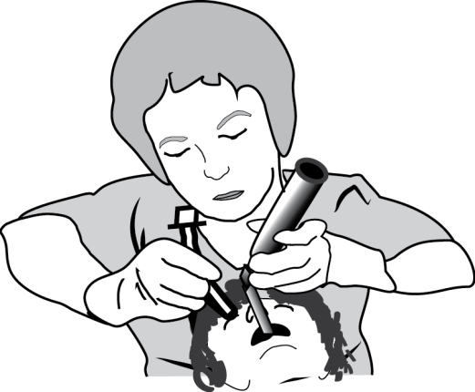 Illustration showing Poor intubation technique from the front demonstrating that raising your arms forces you to rotate your wrist because you cannot easily lift in this position.