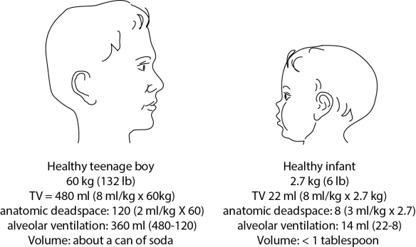 Illustration comparing dead space in a teenager vs a healthy infant