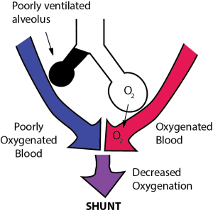 One cause of ventilation perfusion mismatch is shunt. This illustration defines pulmonary shunt