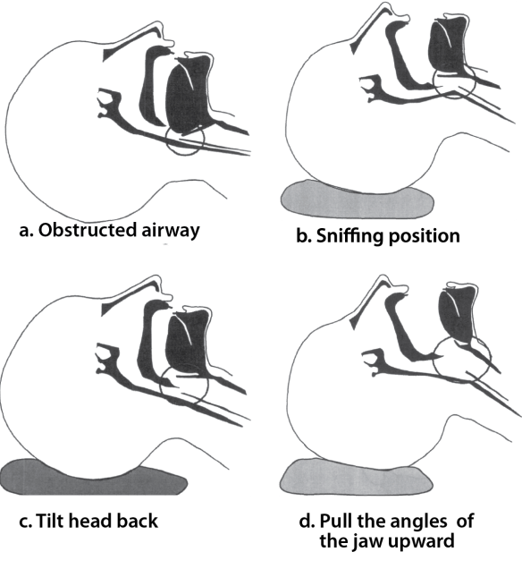 Illustration showing steps of opening an airway: Tilting the head and pulling the jaw upward lifts this tissue off the larynx and opens the airway.