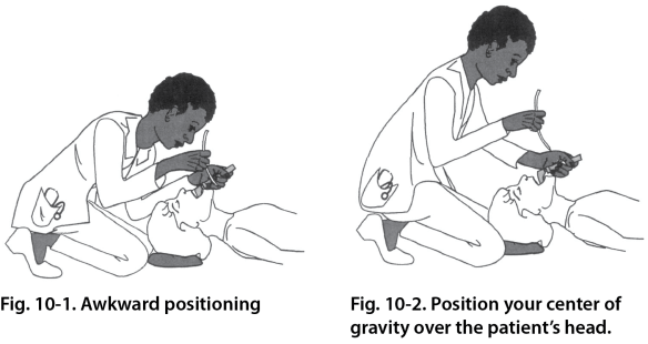 Illustration showing one technique to intubate a patient on the ground. Kneeling behind the cardiac arrest victim during intubation allows the intubator to ergonomically lift the patient's head with the strength of their back and shoulders, not just their arm. It provides the distance needed to use binocular vision to see the larynx.