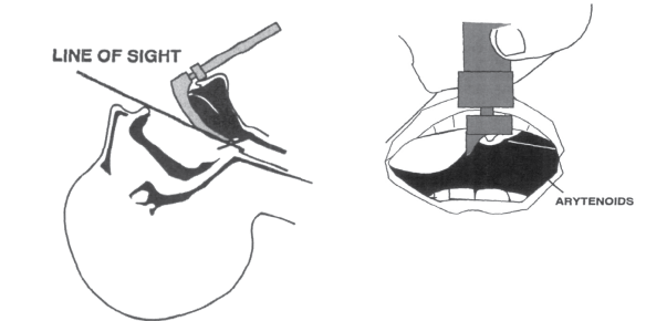 Illustration of how head hyperextension impedes intubation because it makes the larynx appear very anterior. You can compensate by lifting the head into a sniffing position.