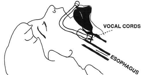 Illustration showing endotracheal tube cuff above the cords