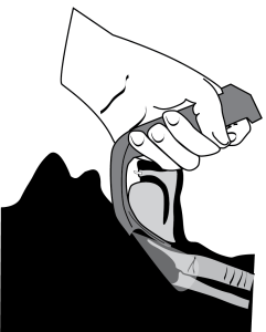 Illustration showing the need to actively lift the jaw upward during intubation with the Glidescope.